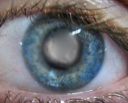 eye with mature cataract